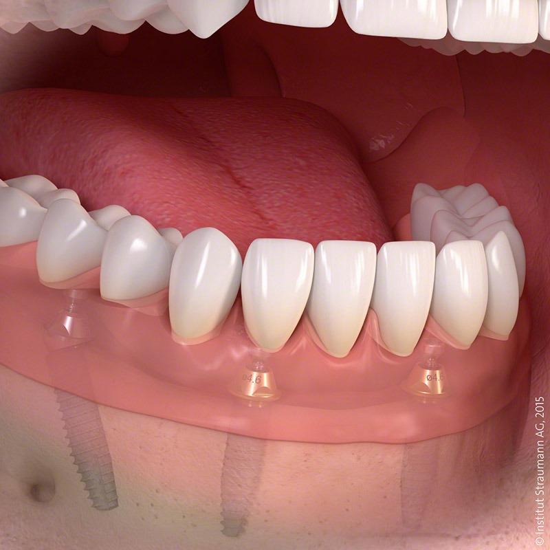 implanty-po-otwarciu-3