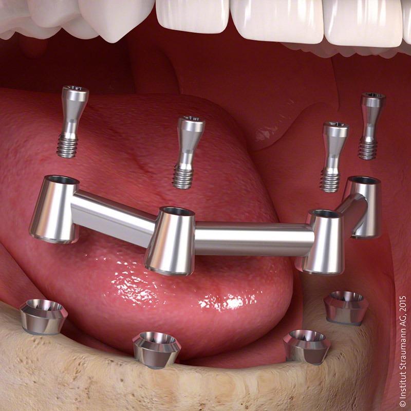 implanty-po-otwarciu-4