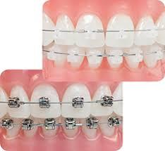 Aparat ortodontyczny 1