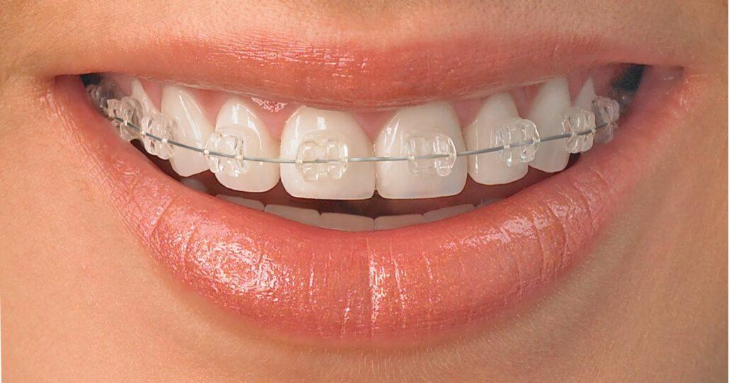 aparat ortodontyczny 2
