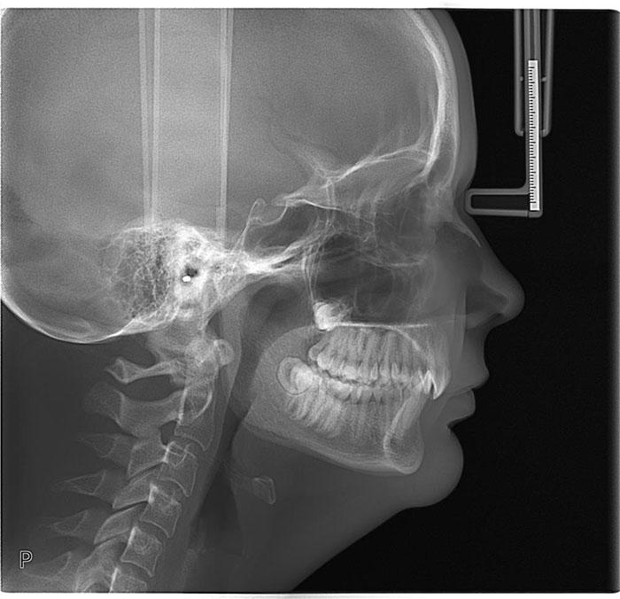 X-ray_Ceph_LAT_rgb